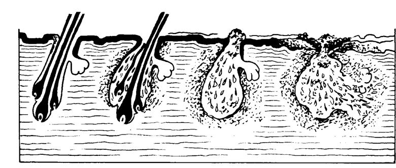 Клещ  в ушках кроликов проделывает ходы, где в дальнейшем откладывает яйца