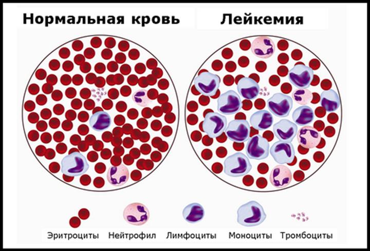 Сравнение здоровой и зараженной крови