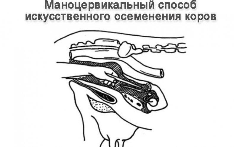 Маноцервикальная методика осеменения