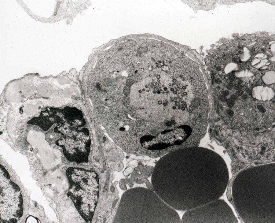 Макрофаг, пораженный вирусом африканской чумы свиней