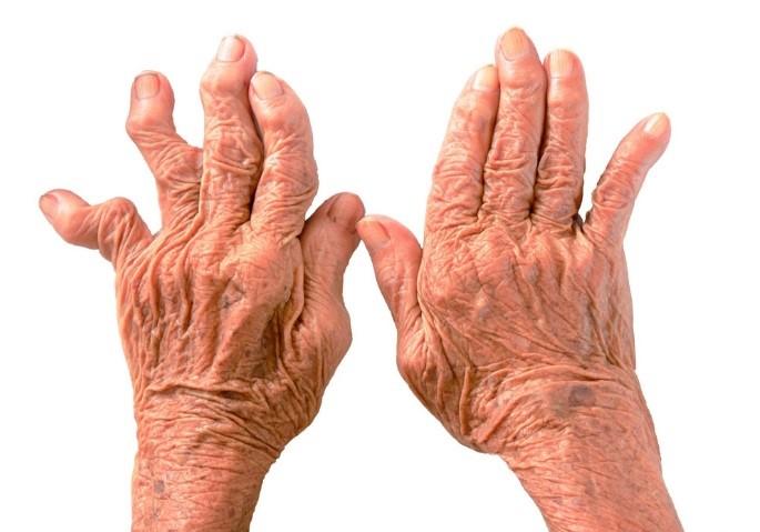 При бруцеллезе возникает артрит пальцев